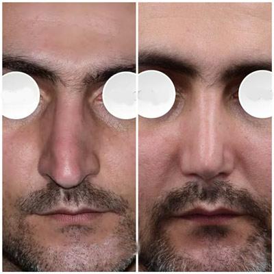 نمونه جراحی بینی دکتر دریانی 5