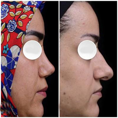 نمونه جراحی بینی دکتر دریانی 10