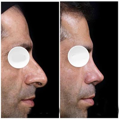 نمونه جراحی بینی دکتر دریانی 11