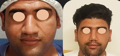 نمونه جراحی بینی دکتر شاهمرادی 11