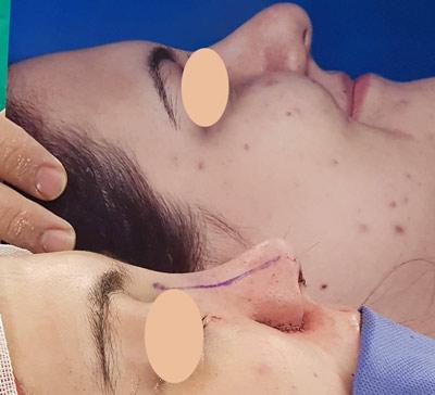 نمونه جراحی بینی دکتر شاهمرادی 10