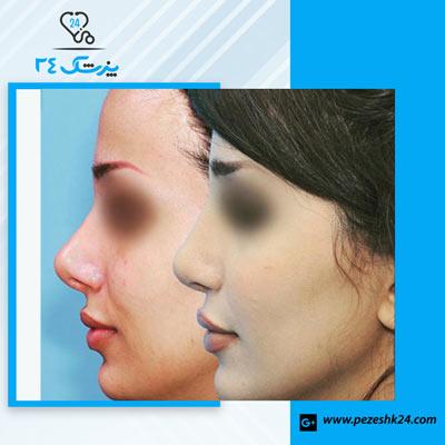 نمونه جراحی بینی دکتر سرکارات 4