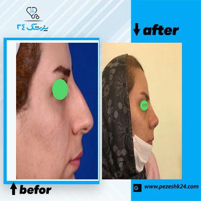 نمونه جراحی بینی دکتر بهشتی 2
