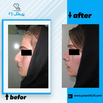 نمونه جراحی بینی دکتر دانش 2