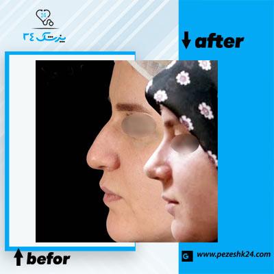 نمونه جراحی بینی دکتر رشدی 2