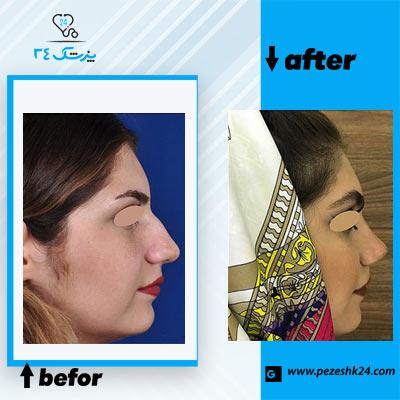 نمونه جراحی بینی دکتر غیاثی 1