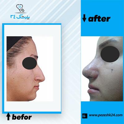 نمونه جراحی بینی دکتر خیری 1