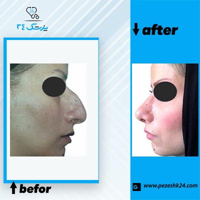 نمونه جراحی بینی دکتر خیری 2