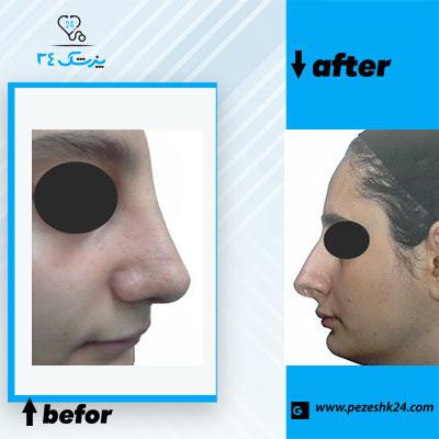 نمونه جراحی بینی دکتر خیری 3