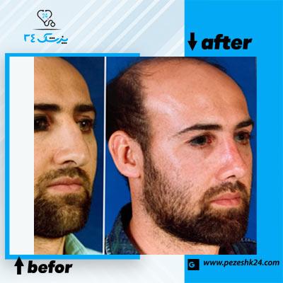 نمونه جراحی بینی دکتر کلاهی 3