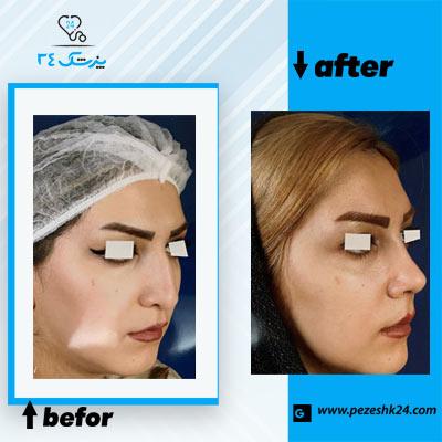 نمونه جراحی بینی دکتر کلاهی 4