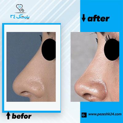 نمونه جراحی بینی دکتر مقبولی 2