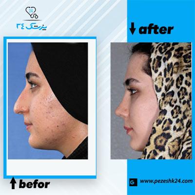 نمونه جراحی بینی دکتر مقبولی 4