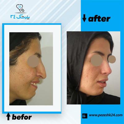 نمونه جراحی بینی دکتر مقدسی 1