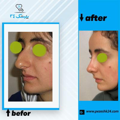 نمونه جراحی بینی دکتر مقدسی 2