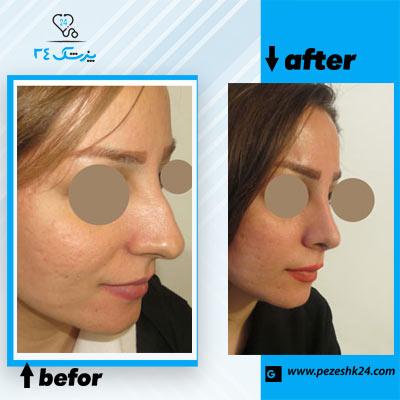 نمونه جراحی بینی دکتر مقدسی 3