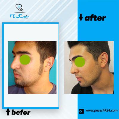 نمونه جراحی بینی دکتر مقدسی 4