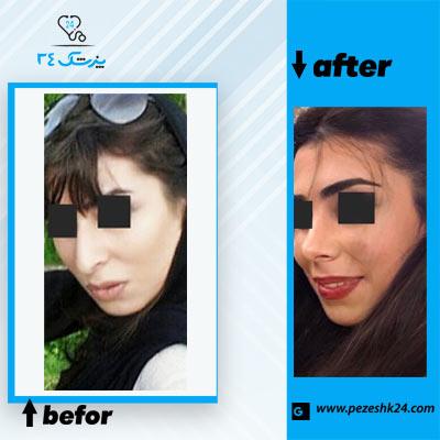 نمونه جراحی بینی دکتر نایب 2