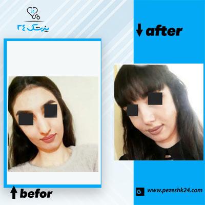 نمونه جراحی بینی دکتر نایب 3