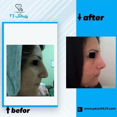 نمونه جراحی بینی دکتر نظری 2