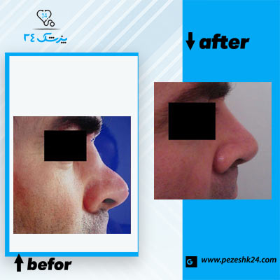 نمونه جراحی بینی دکتر نظری 3