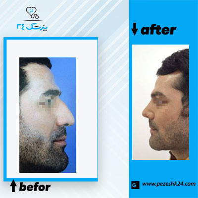 نمونه جراحی بینی دکتر نوجوان 2
