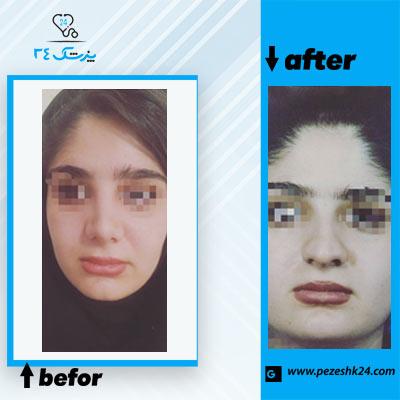نمونه جراحی بینی دکتر نوجوان 3