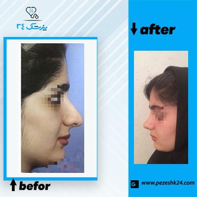 نمونه جراحی بینی دکتر نوجوان 4