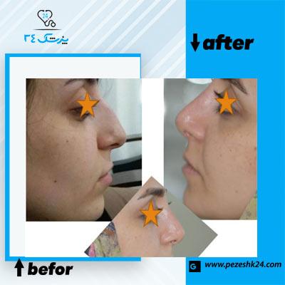 نمونه جراحی بینی دکتر ذوالقدری 4