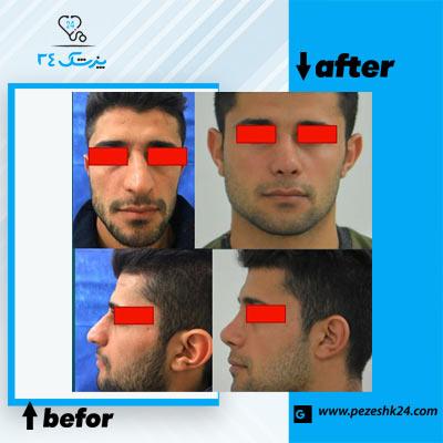نمونه جراحی بینی دکتر ذوالقدری 3