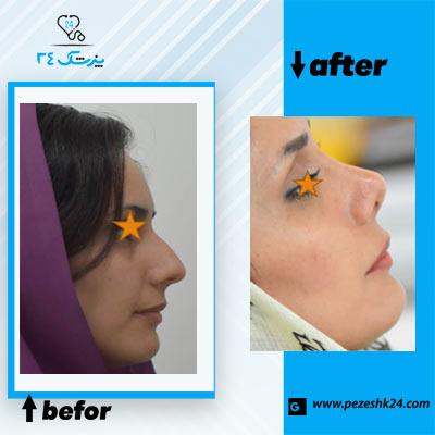 نمونه جراحی بینی دکتر ذوالقدری 2