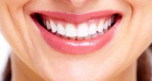 بهترین دندانپزشک زیبایی در مشهد